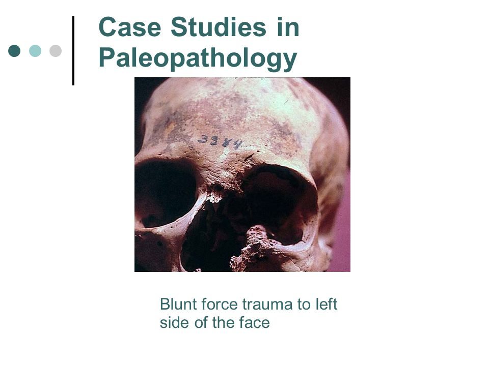 Case Studies in Paleopathology Blunt force trauma to left side of the face