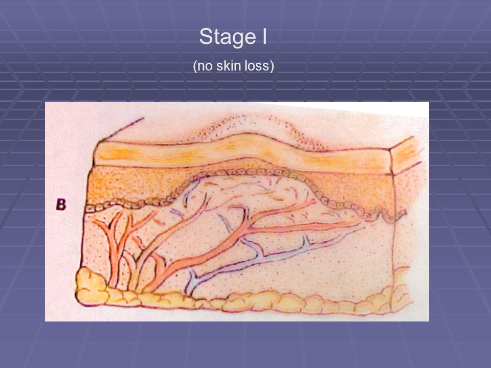 Stage I (no skin loss)