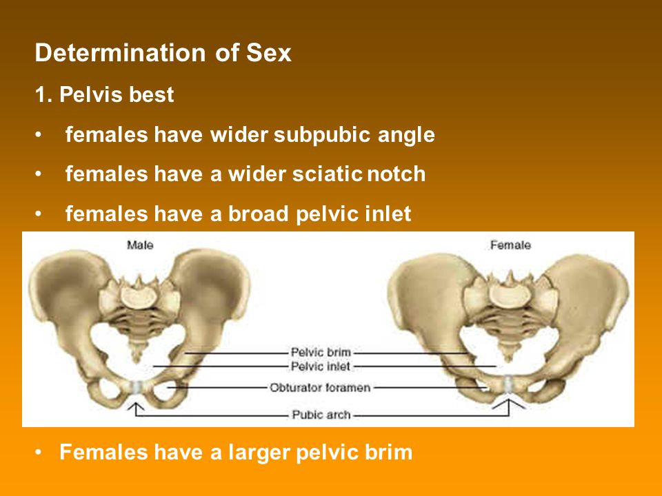 Determination of Sex 1.Pelvis best females have wider subpubic angle females have a wider sciatic notch females have a broad pelvic inlet Females have