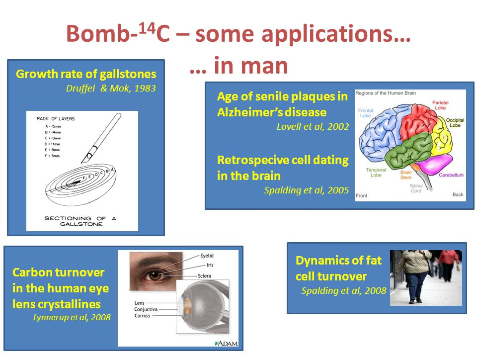 Growth rate of gallstones Druffel & Mok, 1983 Bomb- 14 C – some applications… … in man Age of senile plaques in Alzheimers disease Lovell et al, 2002 Retrospecive cell dating in the brain Spalding et al, 2005 Dynamics of fat cell turnover Spalding et al, 2008 Carbon turnover in the human eye lens crystallines Lynnerup et al, 2008