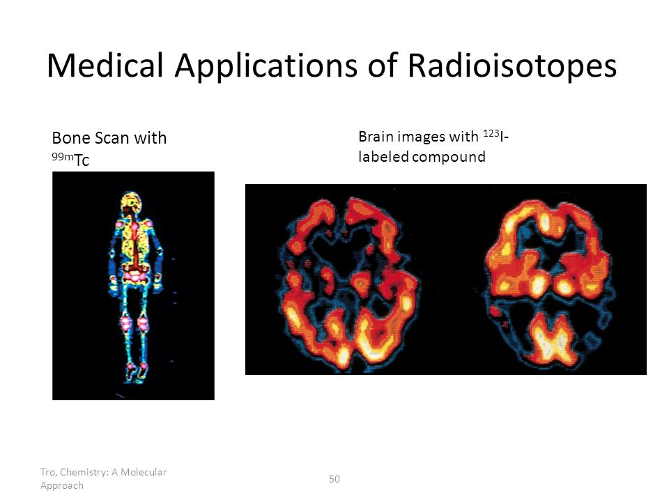 Tro, Chemistry: A Molecular Approach 50 Medical Applications of Radioisotopes Bone Scan with 99m Tc Brain images with 123 I- labeled compound