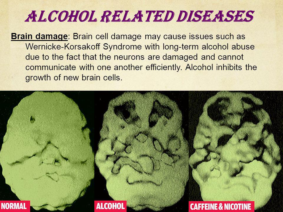 Alcohol Related Diseases Brain damage: Brain cell damage may cause issues such as Wernicke-Korsakoff Syndrome with long-term alcohol abuse due to the