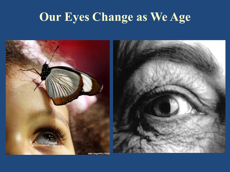 Overview of Normal Age-Related Changes to Vision Smaller pupil – less responsive Loss of focusing flexibility More light scatter within the eye Slower adaptation to lighting changes Less sensitive to blue light Reduce visual acuity Reduced contrast sensitivity