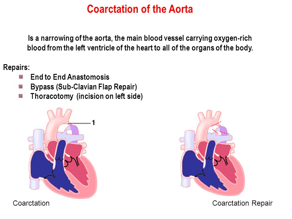 Coarctation of the Aorta Is a narrowing of the aorta, the main blood vessel carrying oxygen-rich blood from the left ventricle of the heart to all of the organs of the body.