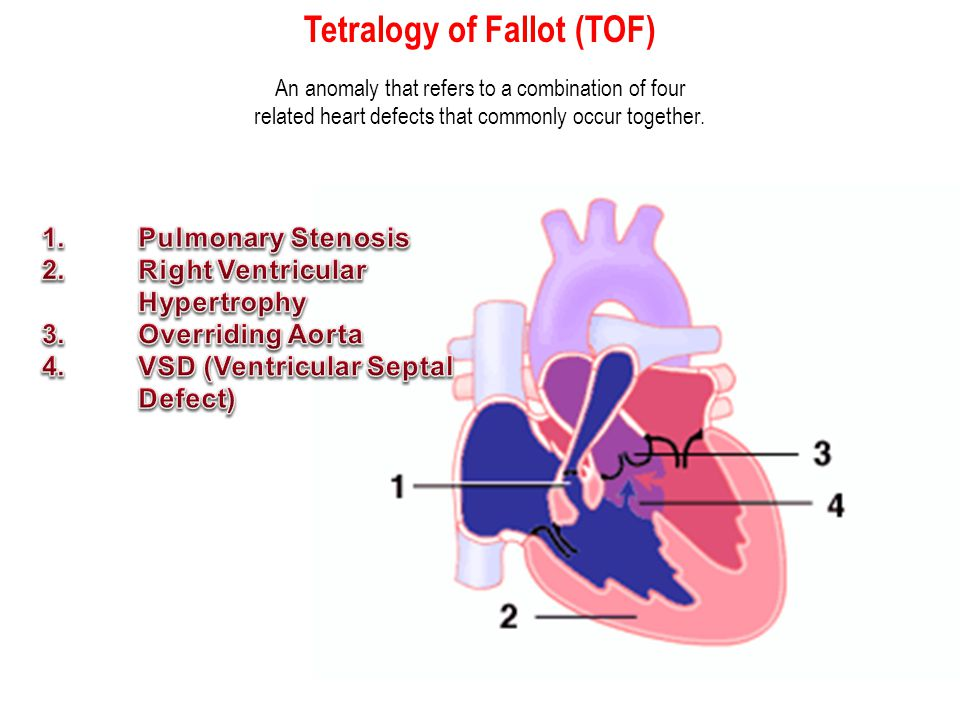 Tetralogy of Fallot (TOF) An anomaly that refers to a combination of four related heart defects that commonly occur together.