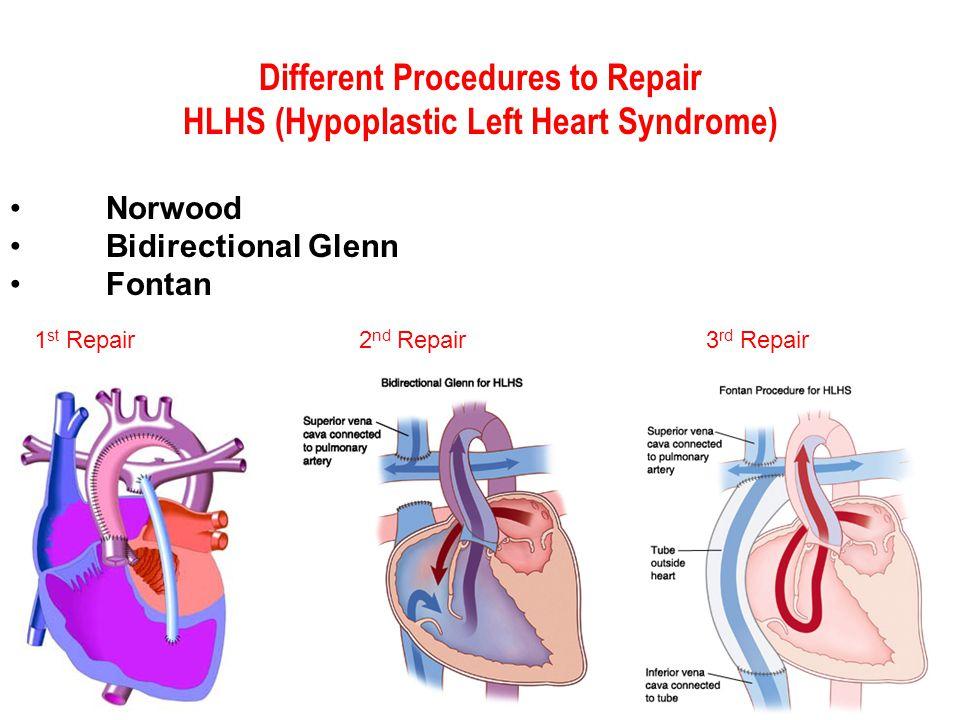 Norwood Bidirectional Glenn Fontan Different Procedures to Repair HLHS (Hypoplastic Left Heart Syndrome) 1 st Repair 2 nd Repair3 rd Repair