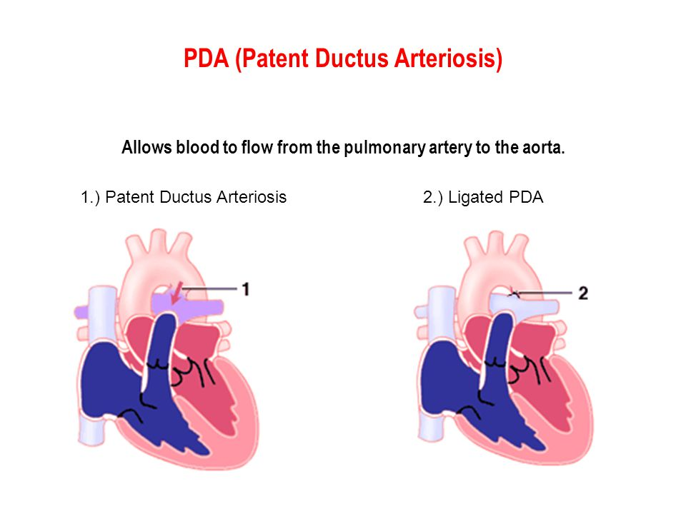 PDA (Patent Ductus Arteriosis) Allows blood to flow from the pulmonary artery to the aorta.