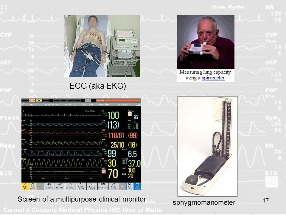 Carmel J Caruana Medical Physics IHC Univ of Malta 17 ECG (aka EKG) sphygmomanometer Screen of a multipurpose clinical monitor