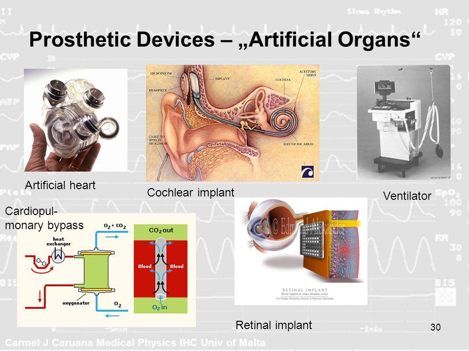 Carmel J Caruana Medical Physics IHC Univ of Malta 30 Prosthetic Devices – Artificial Organs Artificial heart Cochlear implant Retinal implant Ventila