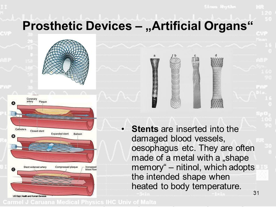 Carmel J Caruana Medical Physics IHC Univ of Malta 31 Prosthetic Devices – Artificial Organs Stents are inserted into the damaged blood vessels, oesop