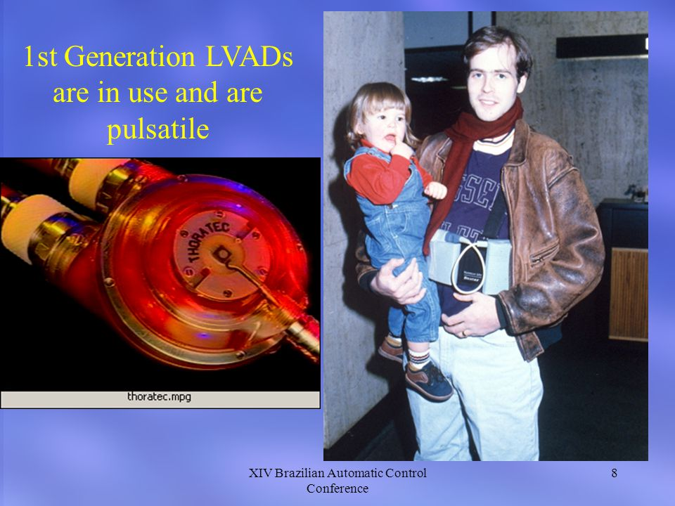 XIV Brazilian Automatic Control Conference 8 1st Generation LVADs are in use and are pulsatile
