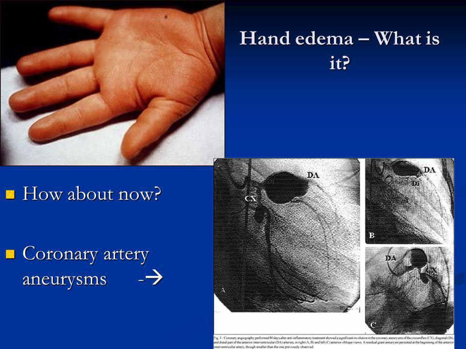 Hand edema – What is it? How about now? How about now? Coronary artery aneurysms - Coronary artery aneurysms -