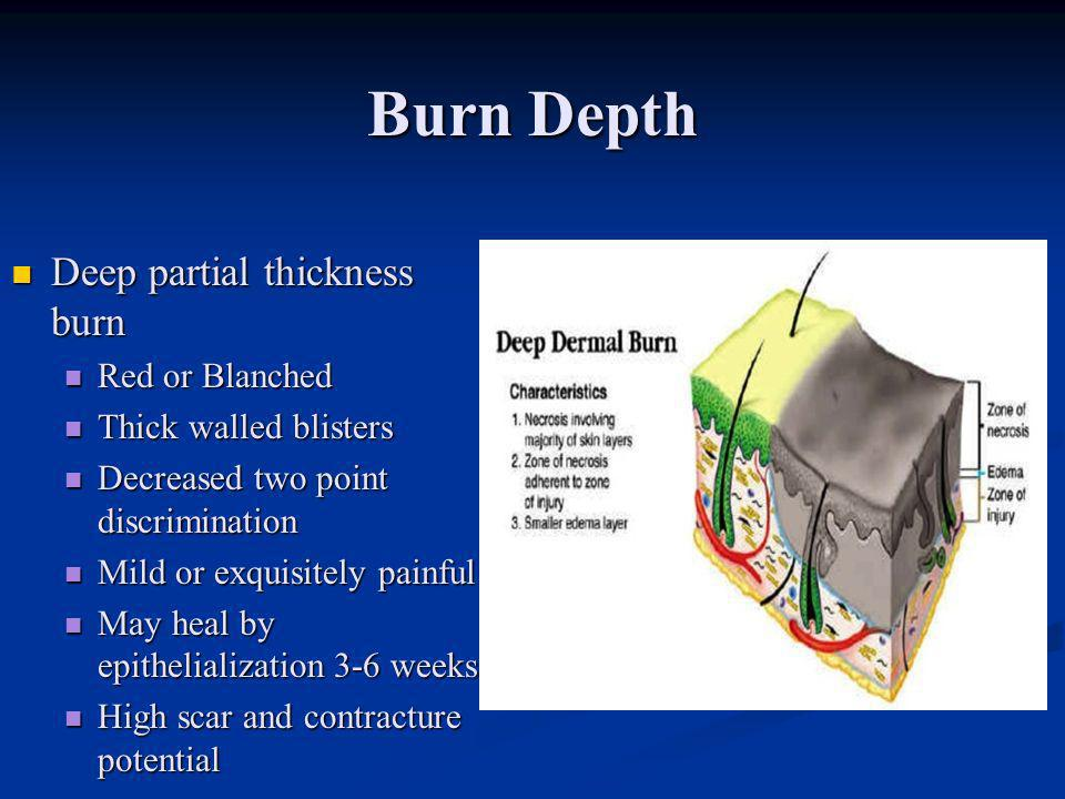 Burn Depth Deep partial thickness burn Deep partial thickness burn Red or Blanched Red or Blanched Thick walled blisters Thick walled blisters Decreas