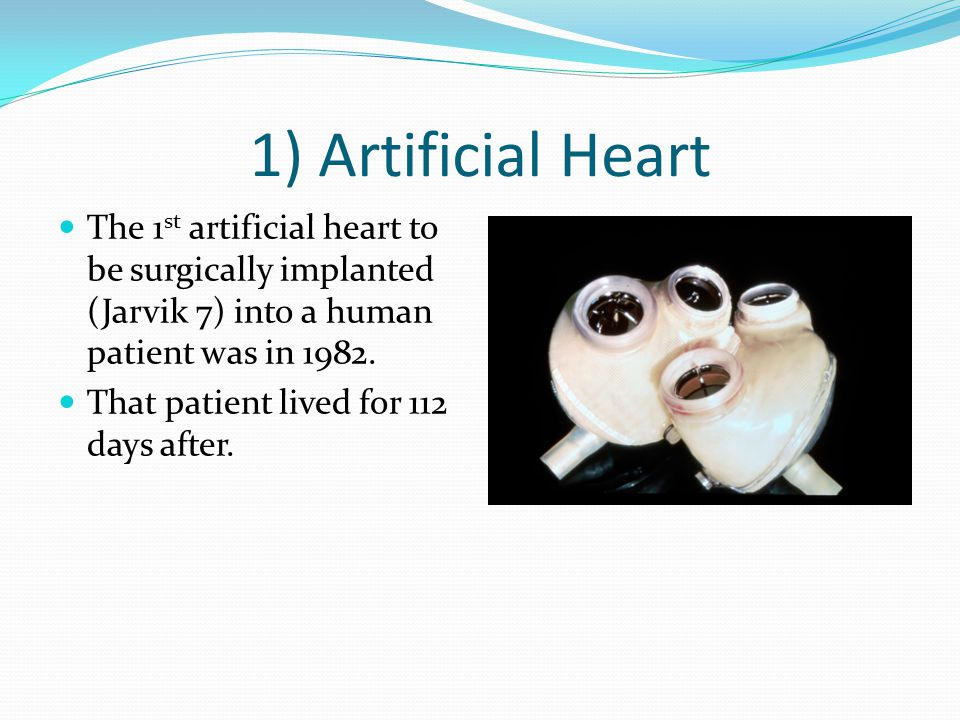 1) Artificial Heart The 1 st artificial heart to be surgically implanted (Jarvik 7) into a human patient was in 1982.