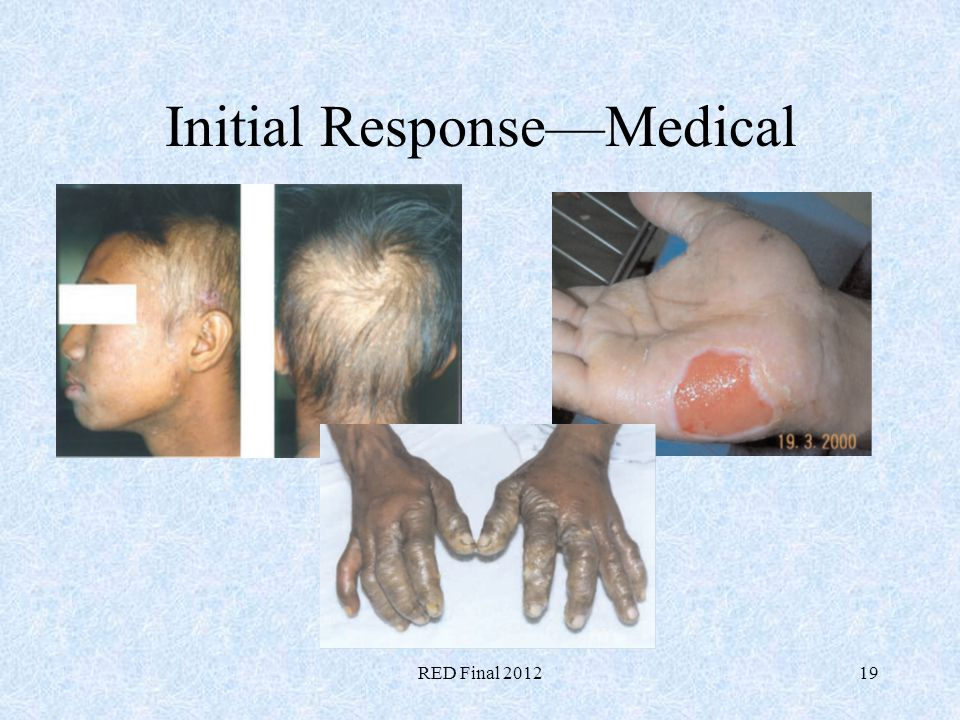 RED Final 201219 Initial ResponseMedical