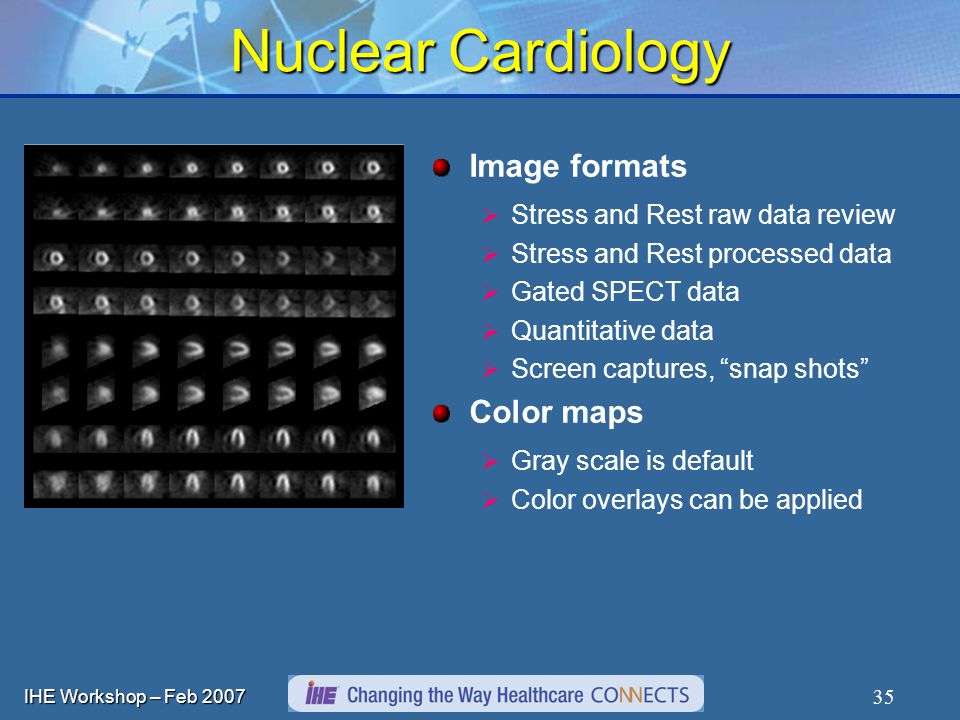 IHE Workshop – Feb Image formats Stress and Rest raw data review Stress and Rest processed data Gated SPECT data Quantitative data Screen captures, snap shots Color maps Gray scale is default Color overlays can be applied Nuclear Cardiology