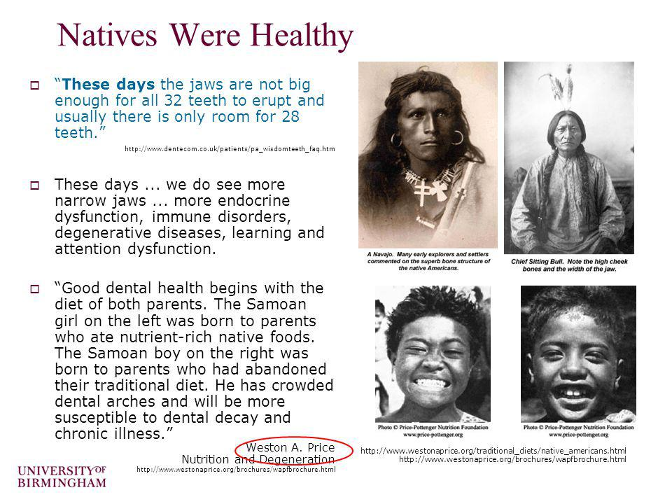 Natives Were Healthy These days the jaws are not big enough for all 32 teeth to erupt and usually there is only room for 28 teeth. http://www.dentecom