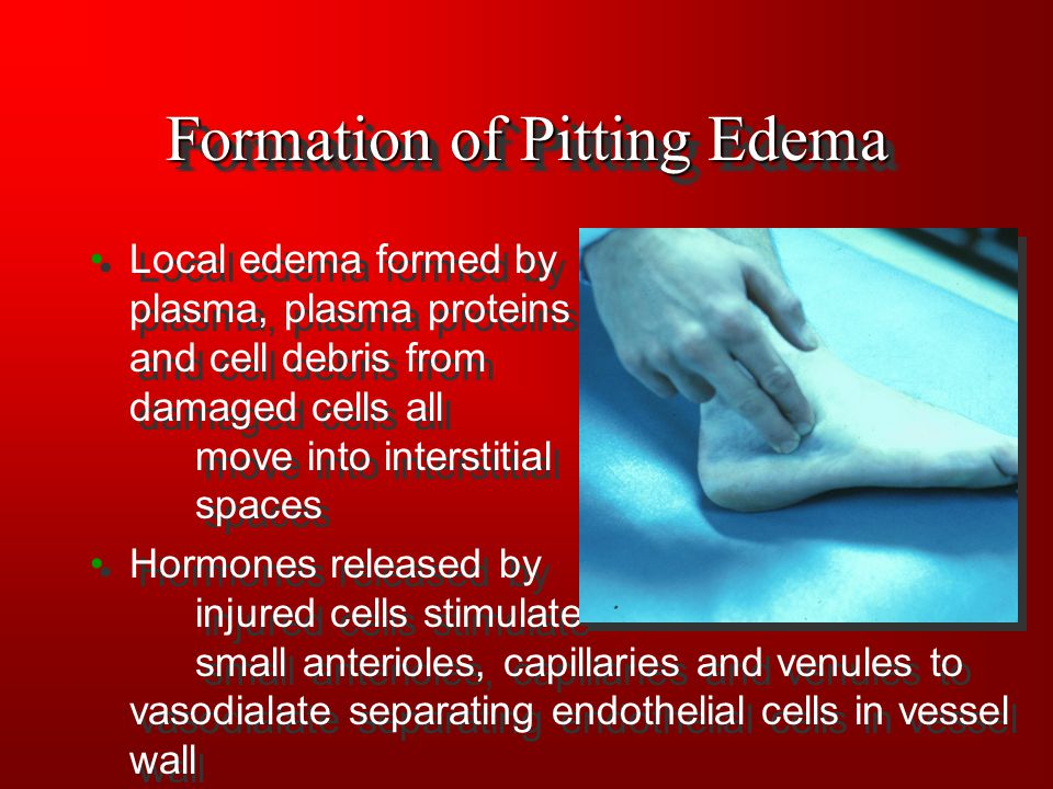 Formation of Pitting Edema Local edema formed by plasma, plasma proteins and cell debris from damaged cells all move into interstitial spaces Hormones