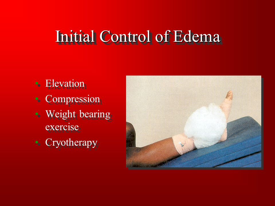 Initial Control of Edema Elevation Compression Weight bearing exercise Cryotherapy Elevation Compression Weight bearing exercise Cryotherapy