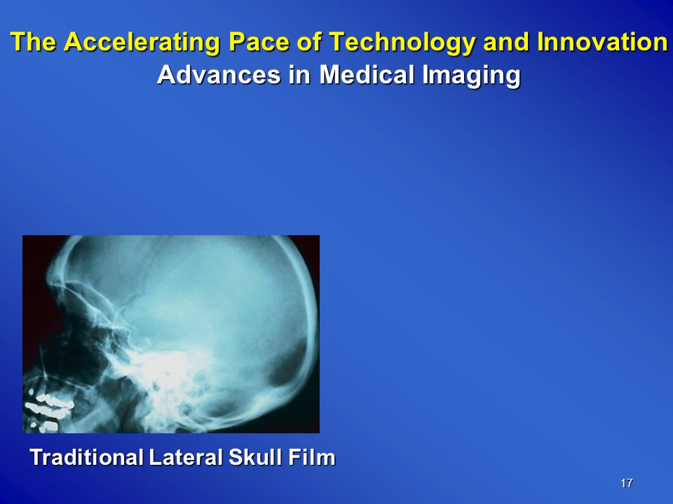 17 Traditional Lateral Skull Film The Accelerating Pace of Technology and Innovation Advances in Medical Imaging