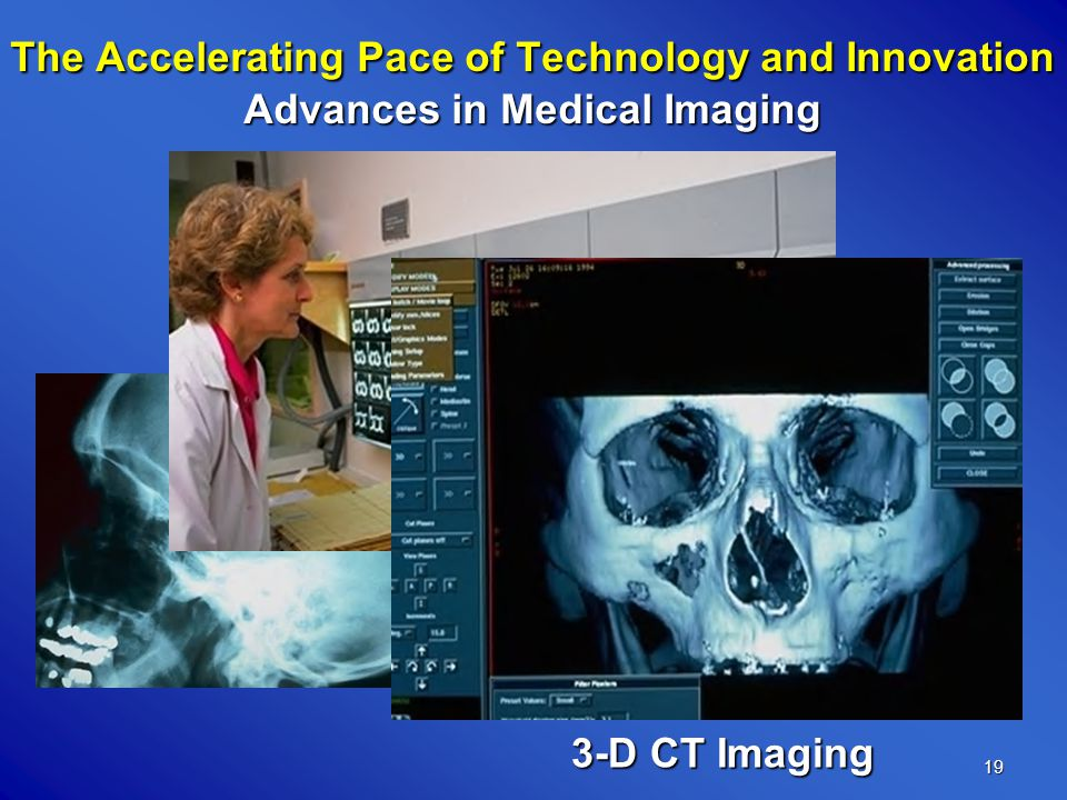 19 The Accelerating Pace of Technology and Innovation Advances in Medical Imaging 3-D CT Imaging