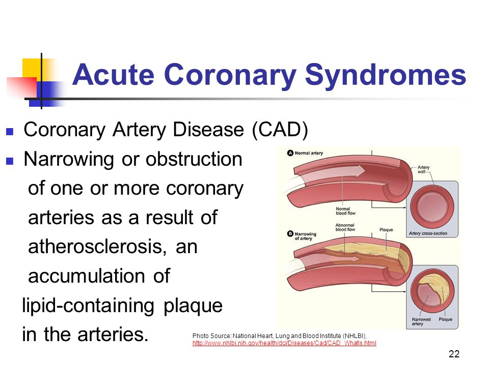 22 Acute Coronary Syndromes Coronary Artery Disease (CAD) Narrowing or obstruction of one or more coronary arteries as a result of atherosclerosis, an