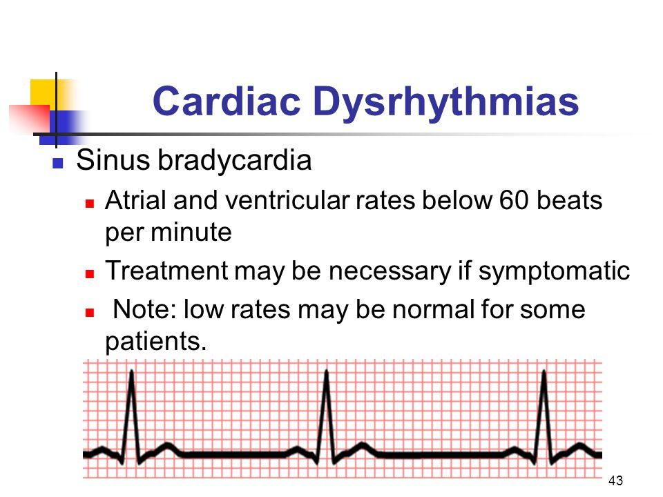43 Cardiac Dysrhythmias Sinus bradycardia Atrial and ventricular rates below 60 beats per minute Treatment may be necessary if symptomatic Note: low r