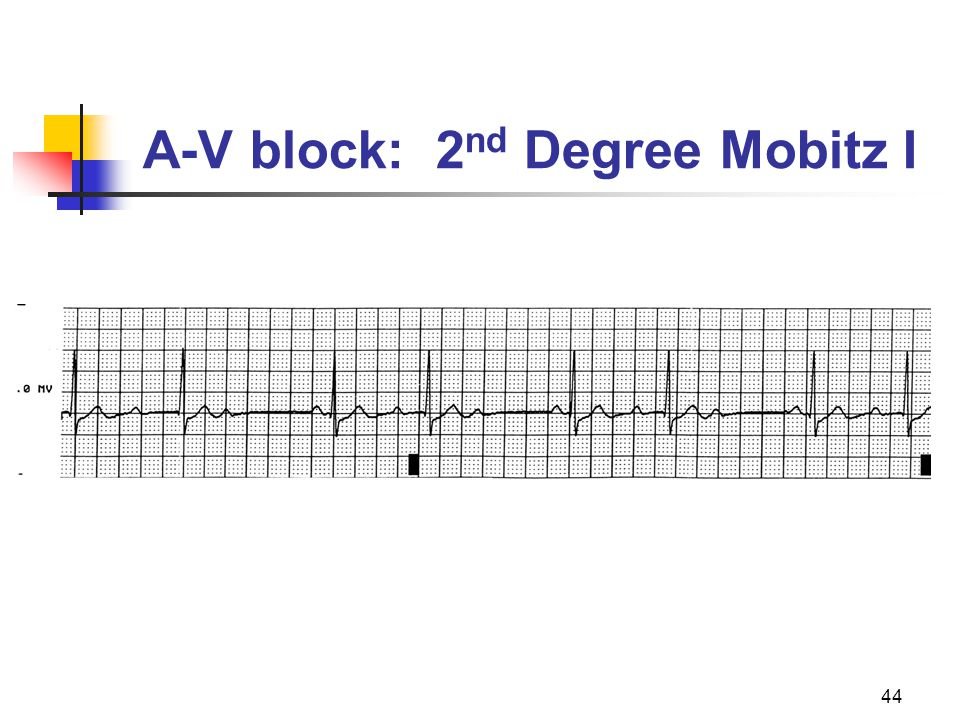 44 A-V block: 2 nd Degree Mobitz I