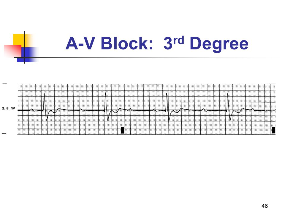 46 A-V Block: 3 rd Degree
