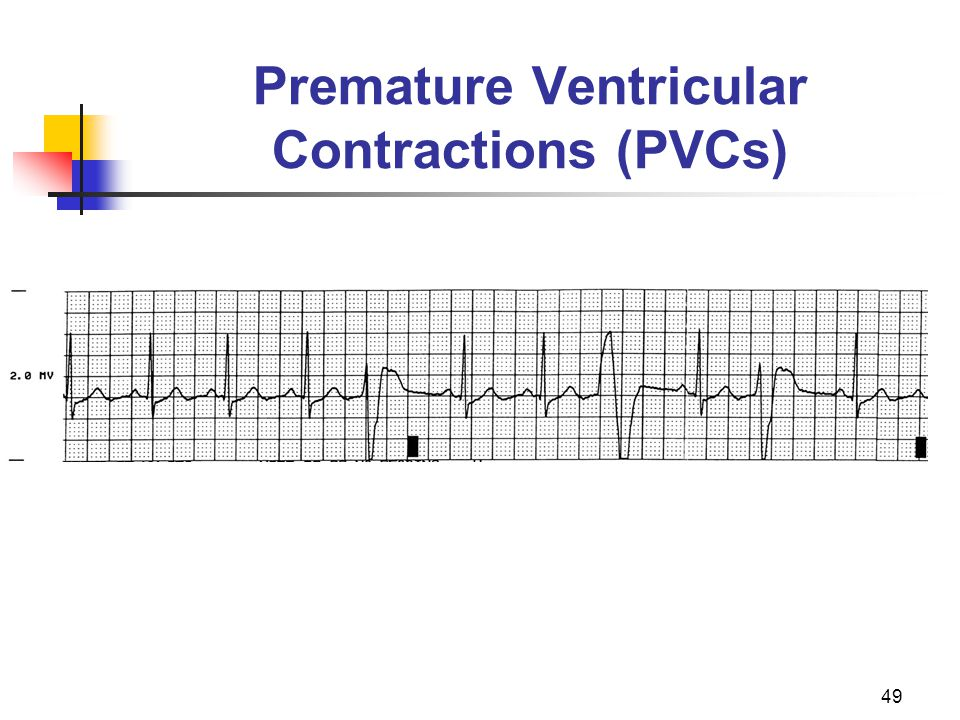 49 Premature Ventricular Contractions (PVCs)