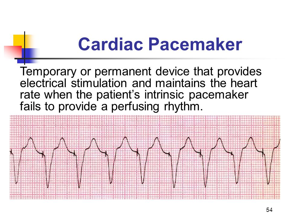 54 Cardiac Pacemaker Temporary or permanent device that provides electrical stimulation and maintains the heart rate when the patients intrinsic pacem