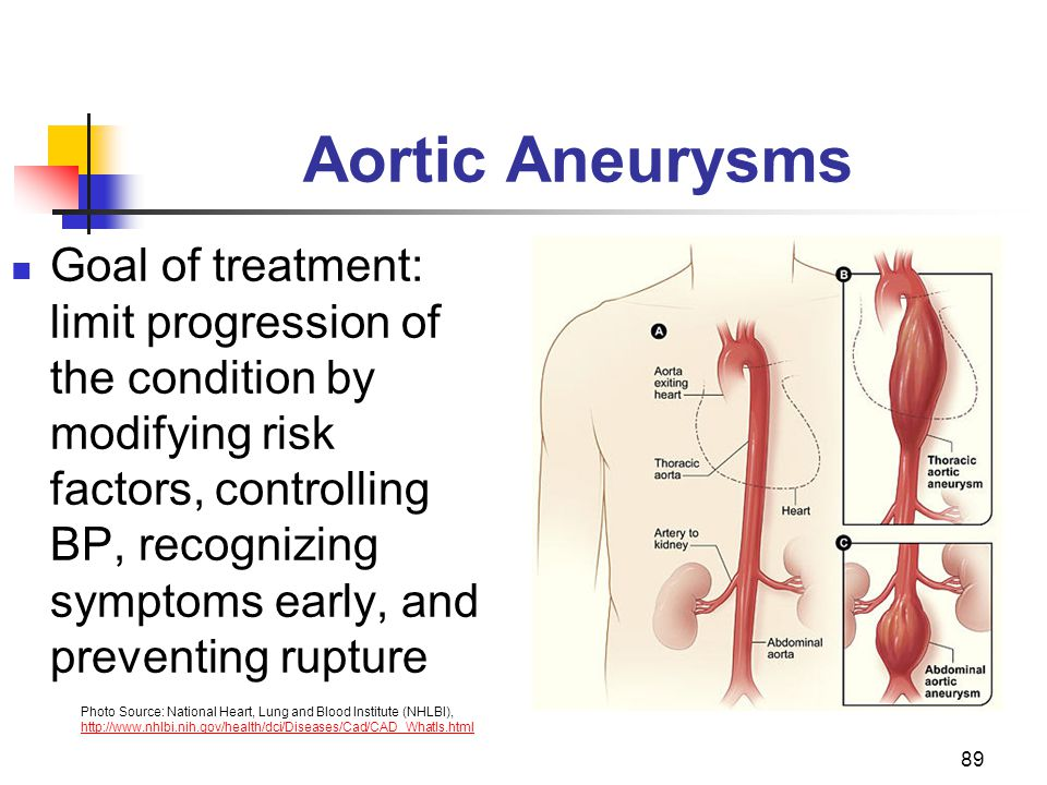 89 Aortic Aneurysms Goal of treatment: limit progression of the condition by modifying risk factors, controlling BP, recognizing symptoms early, and p