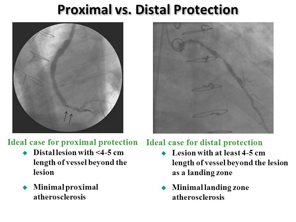 Proximal vs.