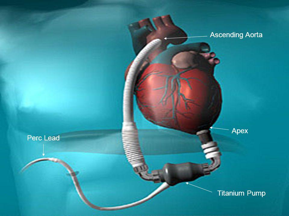 Apex Titanium Pump Ascending Aorta Perc Lead