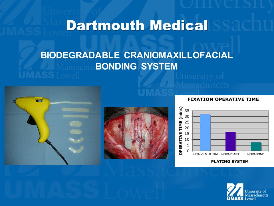 Dartmouth Medical BIODEGRADABLE CRANIOMAXILLOFACIAL BONDING SYSTEM