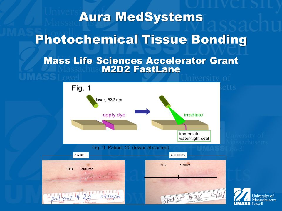 Aura MedSystems Photochemical Tissue Bonding Mass Life Sciences Accelerator Grant M2D2 FastLane Fig.