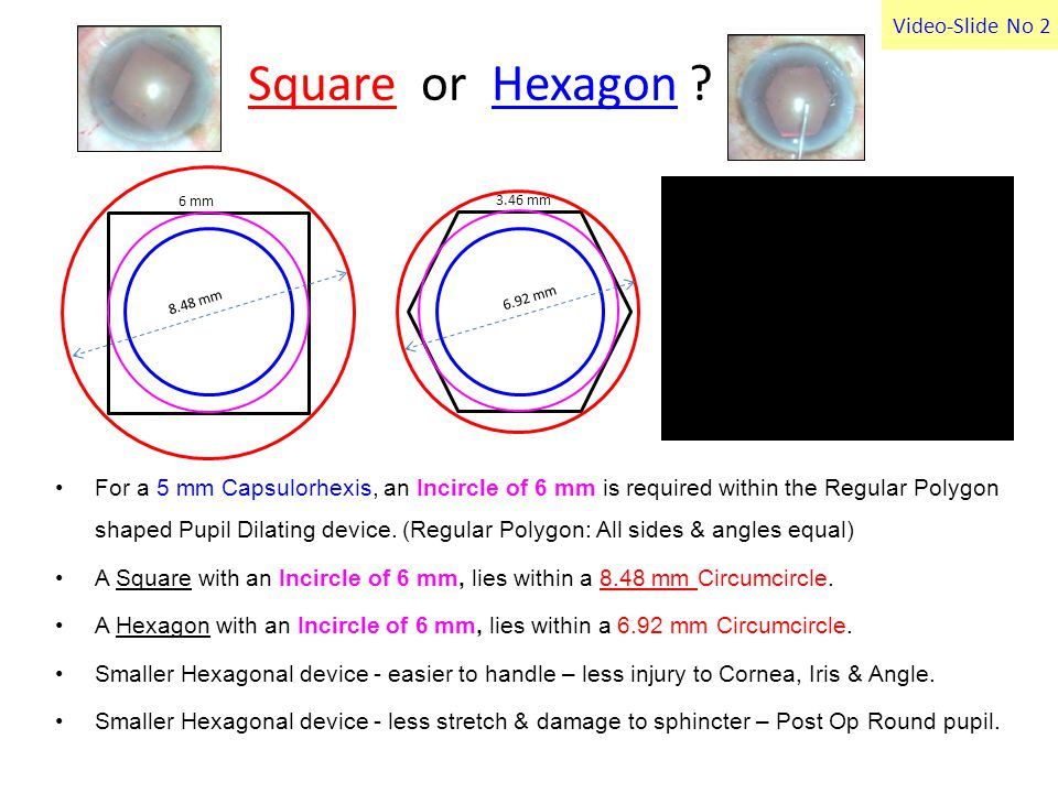 Video-Slide No 2 Square or Hexagon .