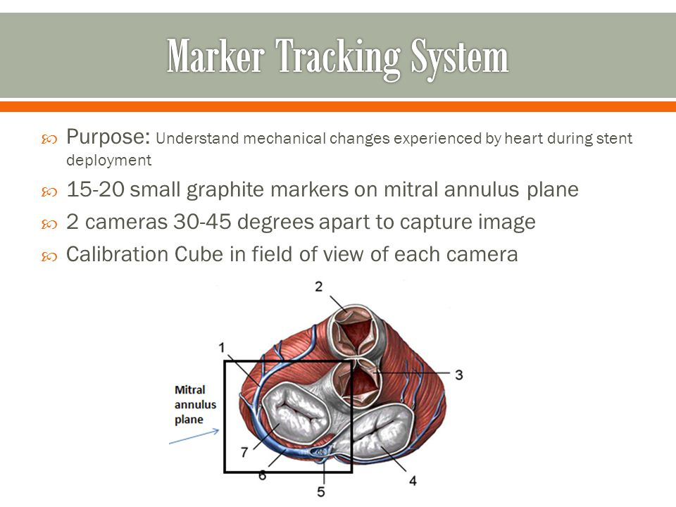 Purpose: Understand mechanical changes experienced by heart during stent deployment small graphite markers on mitral annulus plane 2 cameras degrees apart to capture image Calibration Cube in field of view of each camera