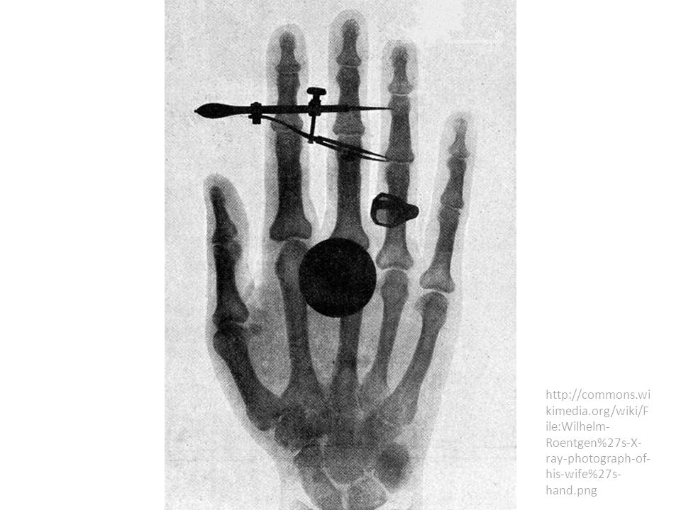 http://commons.wi kimedia.org/wiki/F ile:Wilhelm- Roentgen%27s-X- ray-photograph-of- his-wife%27s- hand.png