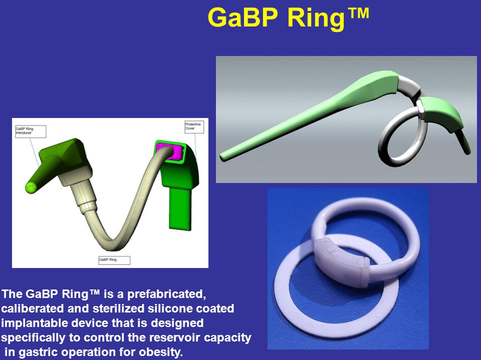 Cross Section through the Ring Banded Pouch Gastric Bypass Operation For Obesity GaBP RING designed for the Gastric Bypass and The Sleeve Gastrectomy Prefabricated, Standardized and available in 4 sizes GaBP RING designed for the Gastric Bypass and The Sleeve Gastrectomy Prefabricated, Standardized and available in 4 sizes
