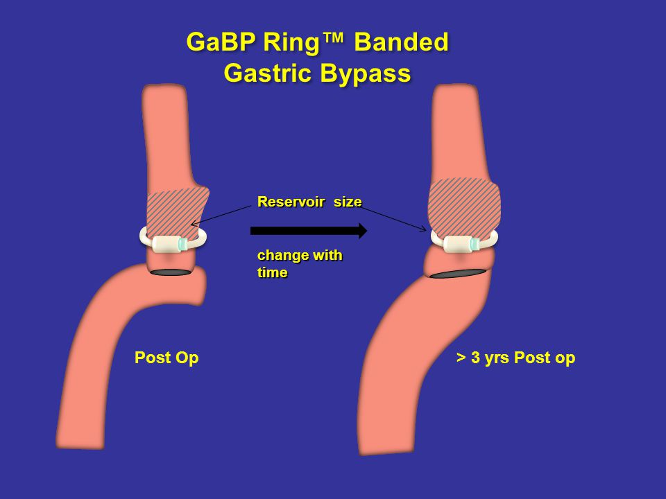 Non Banded Gastric bypass Dilated stoma converts the pouch and the proximal small bowel into a neo-pouch that can accommodate as much as the initial Stomach.