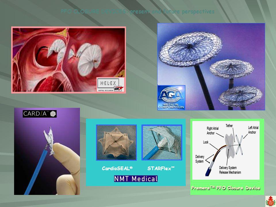 CardioSEAL STARFlex PFO CLOSURE DEVICES: present and future perspectives Premere TM PFO Closure Device