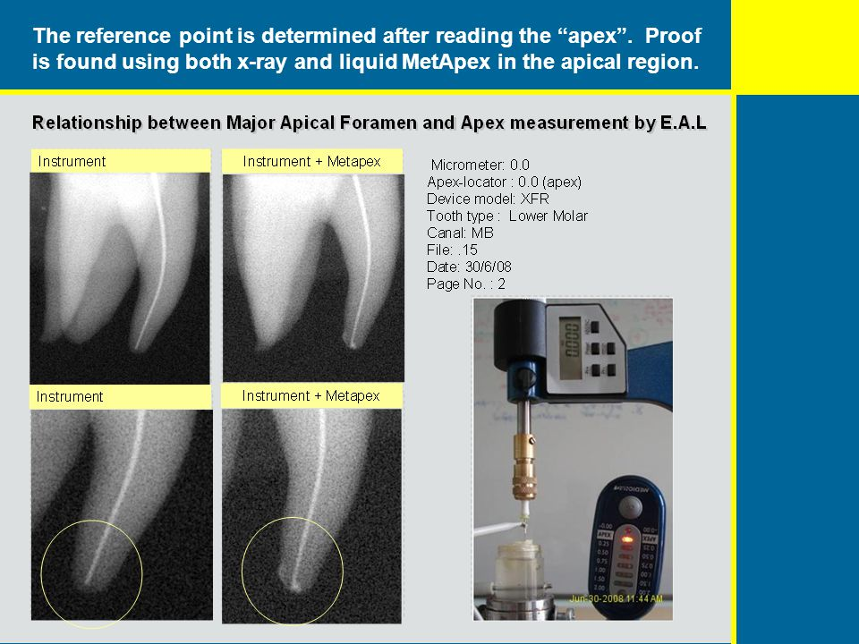 The reference point is determined after reading the apex. Proof is found using both x-ray and liquid MetApex in the apical region.