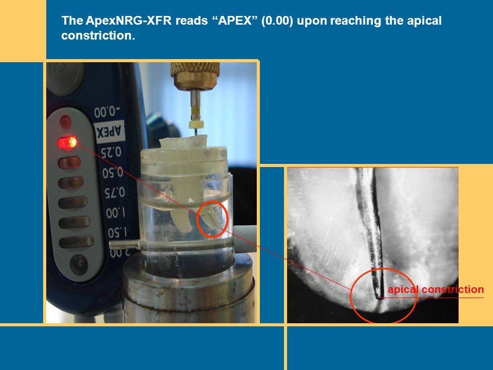 The ApexNRG-XFR reads APEX (0.00) upon reaching the apical constriction. apical constriction