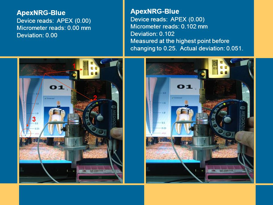 Riding on the device =0.00 ApexNRG-Blue Device reads: APEX (0.00) Micrometer reads: 0.00 mm Deviation: 0.00 ApexNRG-Blue Device reads: APEX (0.00) Micrometer reads: 0.102 mm Deviation: 0.102 Measured at the highest point before changing to 0.25.