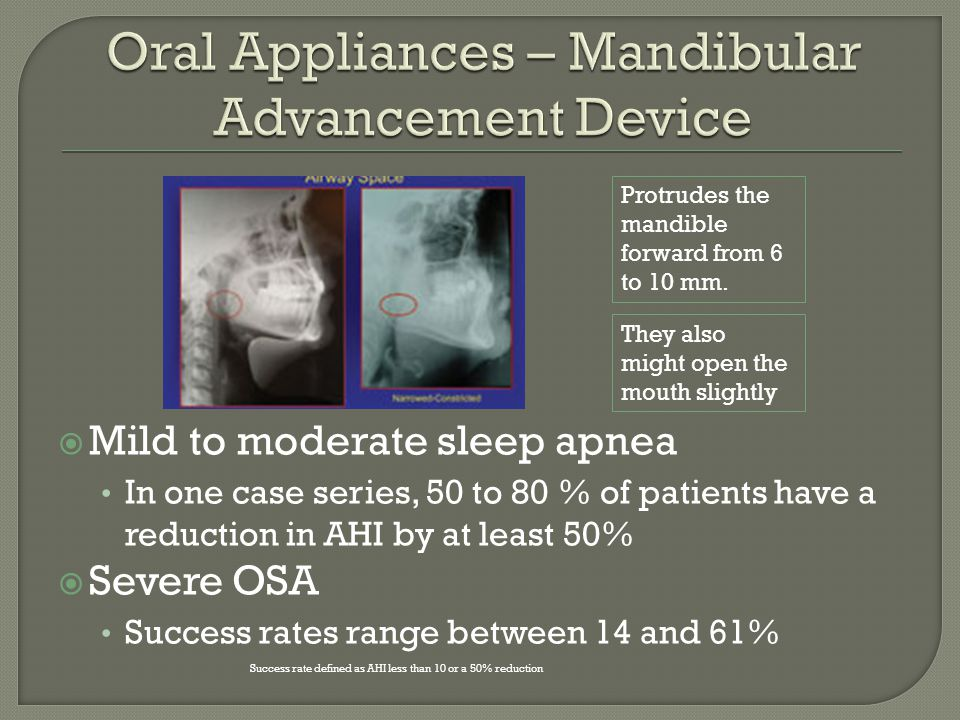 Mild to moderate sleep apnea In one case series, 50 to 80 % of patients have a reduction in AHI by at least 50% Severe OSA Success rates range between 14 and 61% Success rate defined as AHI less than 10 or a 50% reduction Protrudes the mandible forward from 6 to 10 mm.