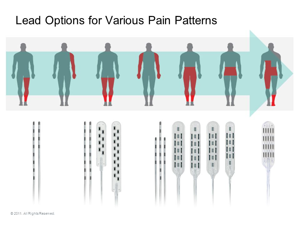 Lead Options for Various Pain Patterns © 2011. All Rights Reserved.