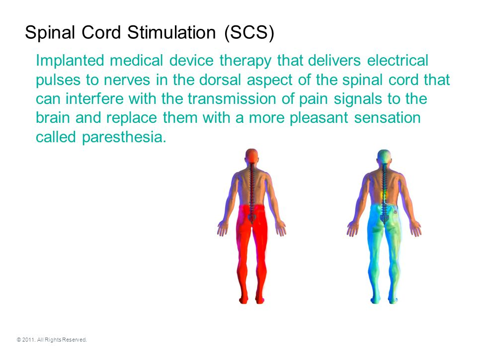Clinical studies on SCS continue to support the effectiveness of this therapy.