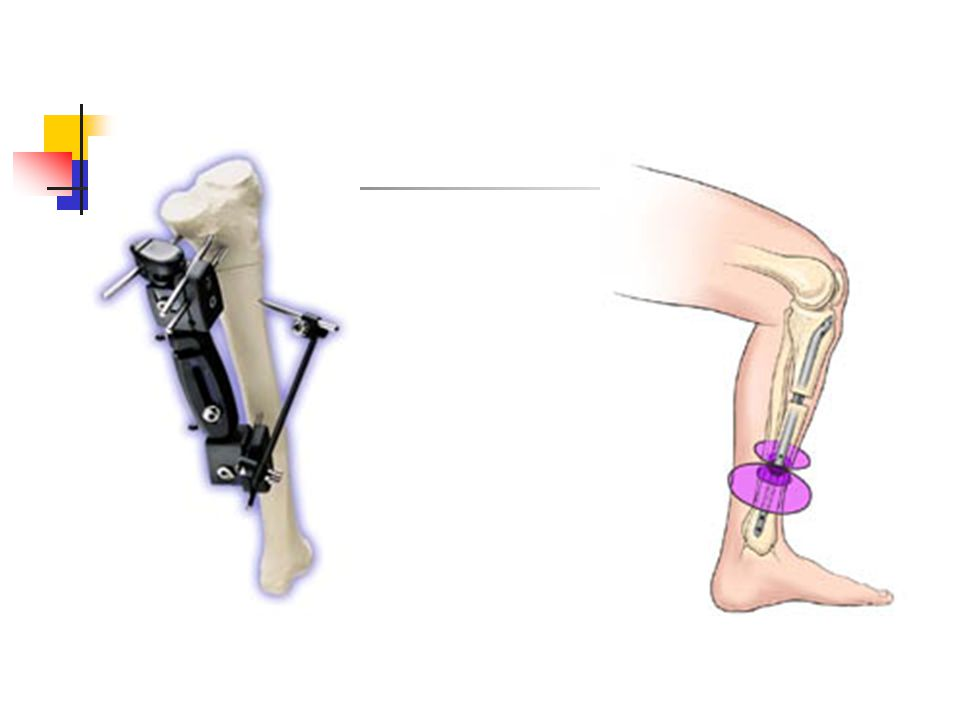 Techniques of fixation & lengthening Pure external fixation (old classic ) External fixation for lengthening over a nail External fixation & lengtheni
