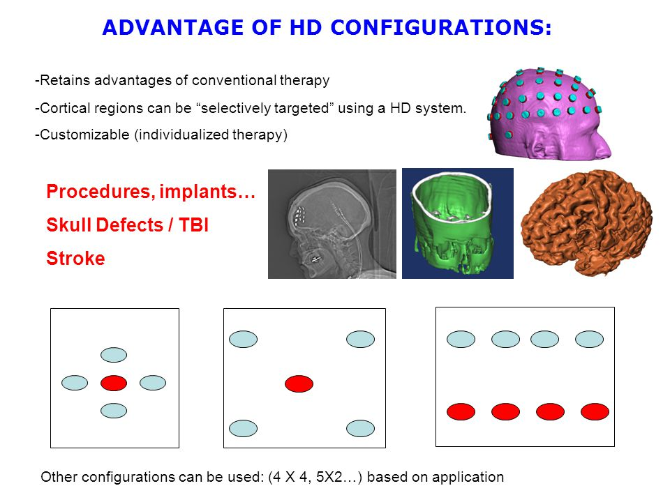 -Retains advantages of conventional therapy ADVANTAGE OF HD CONFIGURATIONS: Other configurations can be used: (4 X 4, 5X2…) based on application -Cortical regions can be selectively targeted using a HD system.
